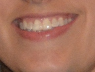 My teeth before