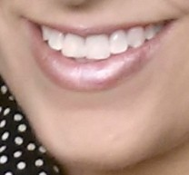 My teeth after